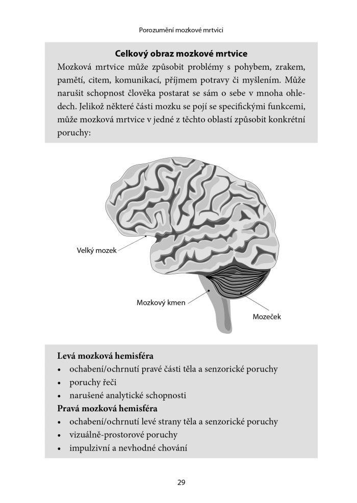 Jak se uzdravit po mozkové mrtvici