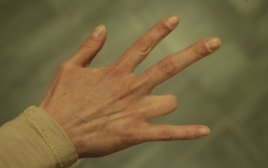 Pětatřicetiletá Aneta: Včela jí připravila o prst. Kvůli prstýnku