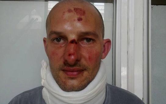 Další brutální útok v Duchcově: Romové v sobotu zbili dva muže, jeden má otřes mozku