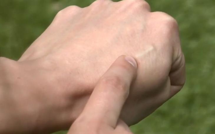 Velký bratr úřaduje: Zadávat otisk prstu nevadí, ale o čip pod kůži Češi nestojí. Proč asi...