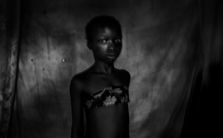 Šílená praxe žehlení prsou přijíždí z Kamerunu i mezi nás. Komentář Štěpána Chába